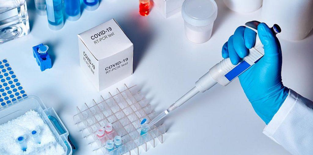коронавірус Верховина